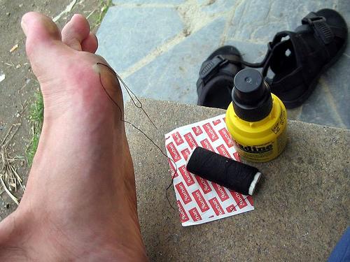 Las ampollas suelen salir después de largas caminatas o a causa del calzado
